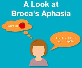 Blog_Brocas_Aphasia_image